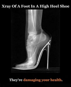 high-heels high risk for health